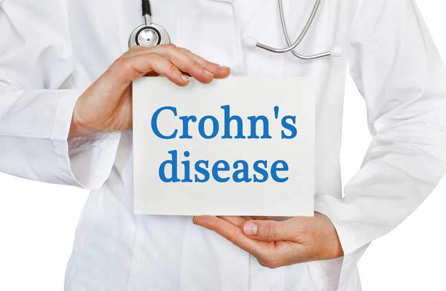 Could Naturopathy Be the Answer to Managing Crohn's Disease?